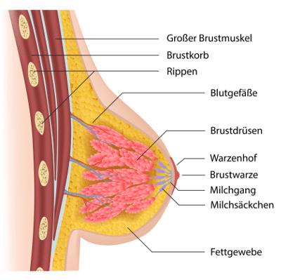 Fettabsaugen an der Brust: Bei der Frau eine zu grosse Brust verkleinern lassen
