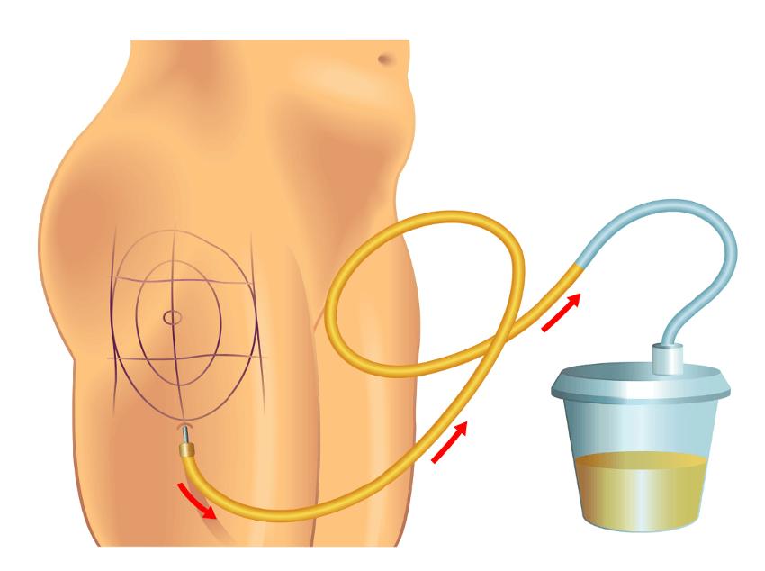 Fettabsaugung am Oberschenkel